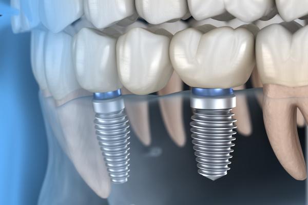 implant-dental - コピー